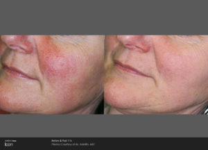 icon-m-adatto-rosacea-post3tx